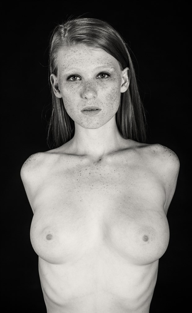 Naked girls covered in freckles