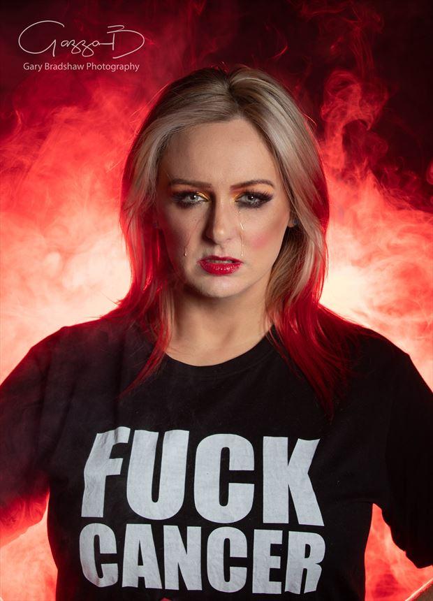 f cancer portrait photo by model kelly_kooper